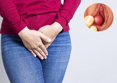 Nổi hạch ở vùng kín nữ bệnh gì và cách điều trị