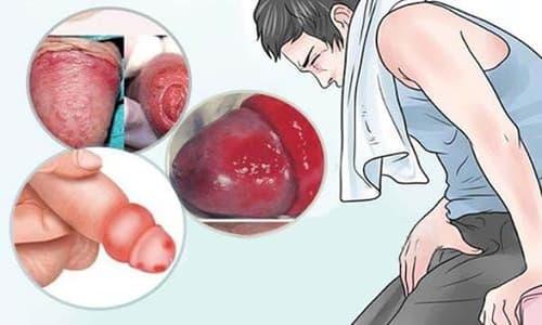 Bệnh viêm nhiễm nam khoa: Nguyên nhân, dấu hiệu và cách chữa trị