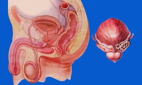 Viêm tuyến tiền liệt là gì: Nguyên nhân, dấu hiệu và cách điều trị